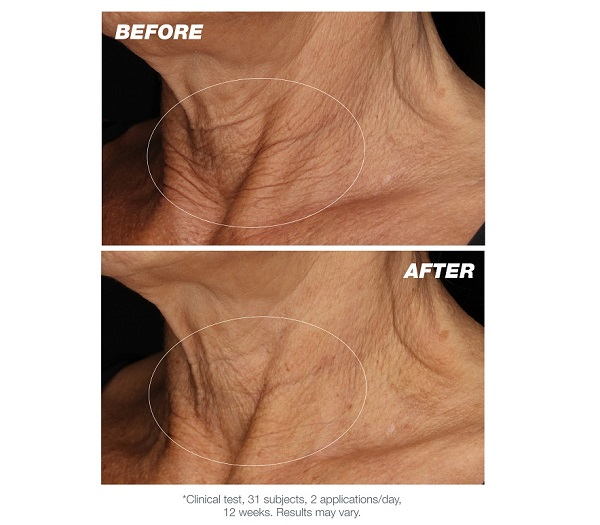 before and after photos after 12 weeks use of the Dermalogica Neck Fit Contour Serum